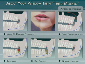 Wisdom Teeth | Mclean County Dental
