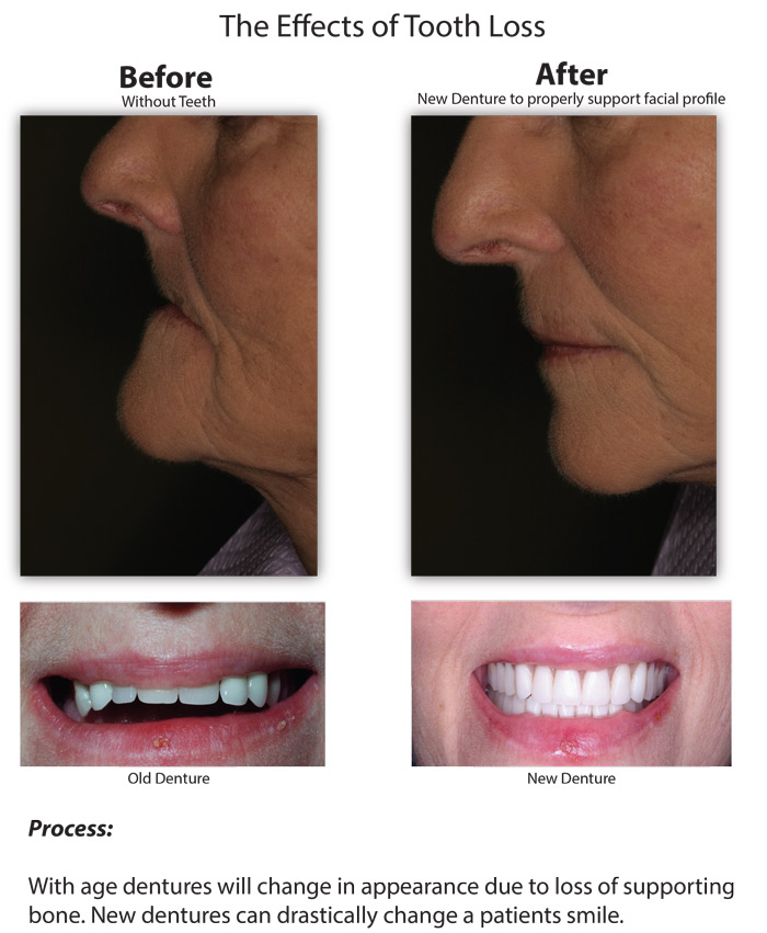 Effects-of-Tooth-Loss1